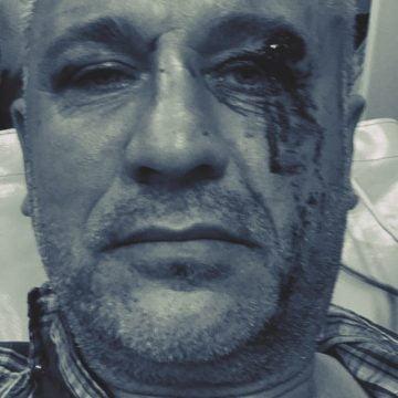 Activistul de mediu Tiberiu Boșutar, bătut în timp ce urmărea niște tăieri ilegale de arbori